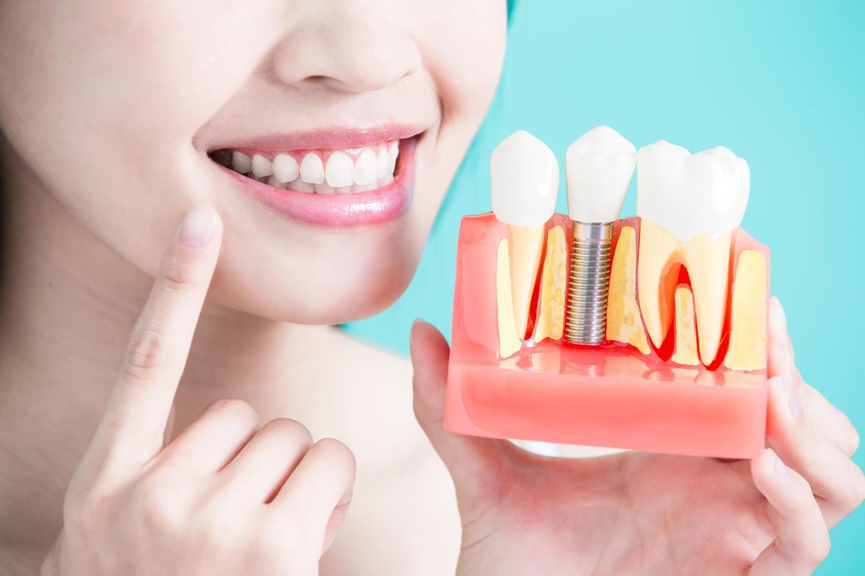 b8f4781868e65d 7 choses à savoir sur les couronnes dentaires