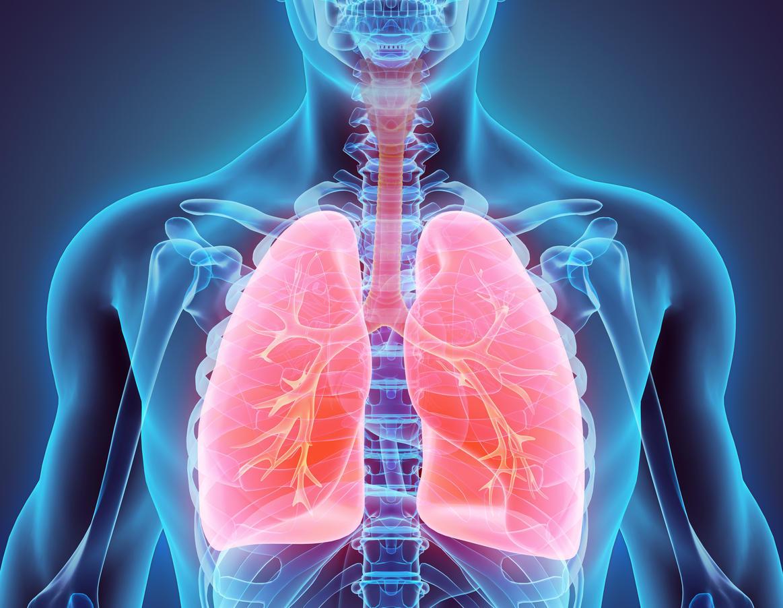 le cancer du poumon le plus meurtrier des cancers chez l 39 homme et la femme les 5 cancers les. Black Bedroom Furniture Sets. Home Design Ideas