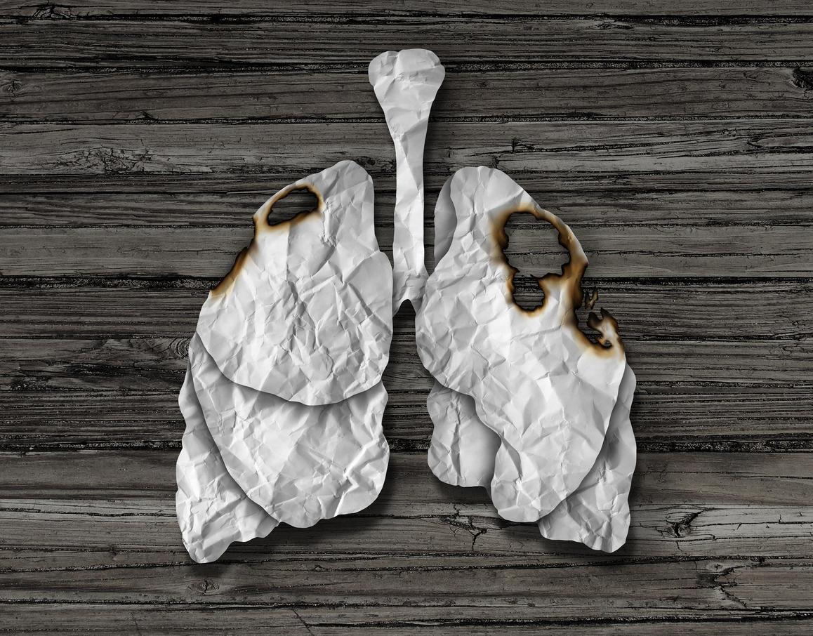 combien de temps peut on vivre avec un cancer du poumon medisite. Black Bedroom Furniture Sets. Home Design Ideas