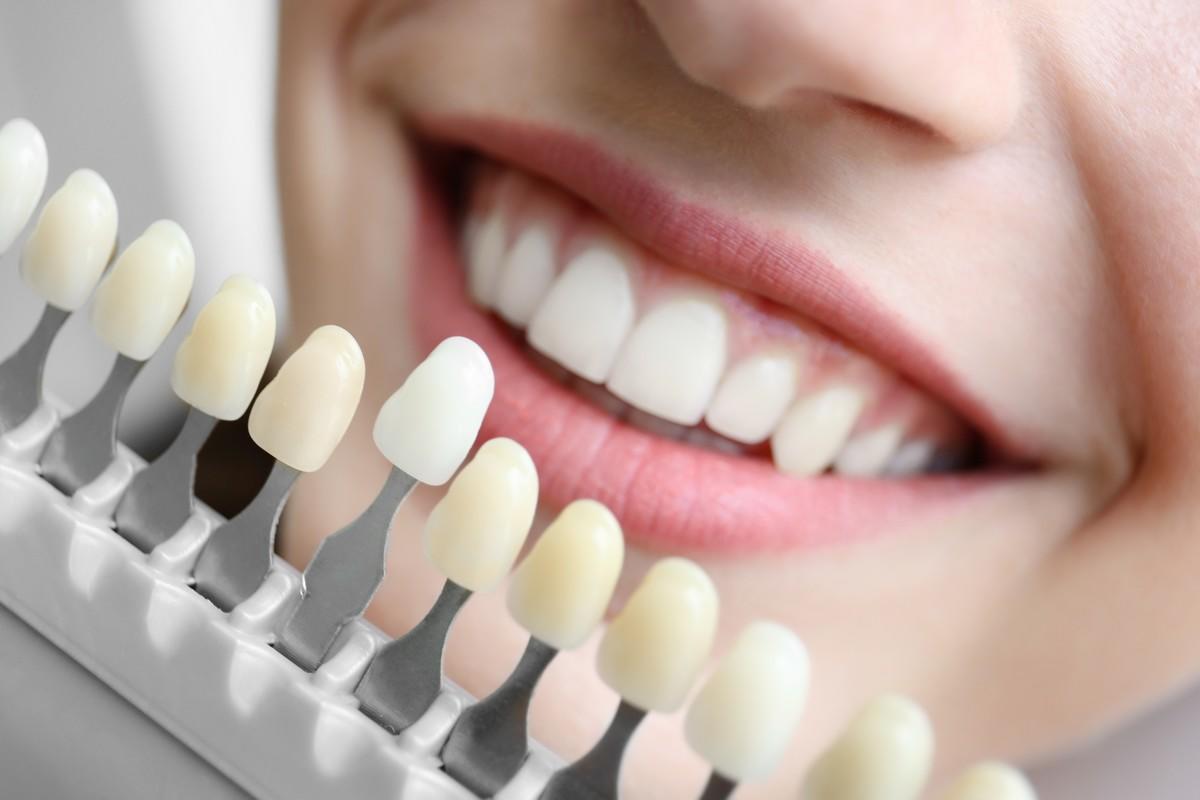 comment avoir de jolies dents blanches medisite. Black Bedroom Furniture Sets. Home Design Ideas