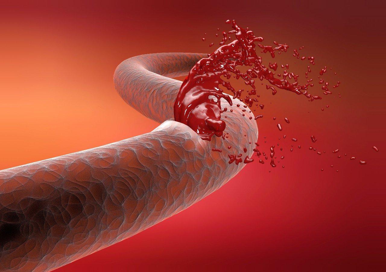 Covid-19 : les malades auraient plus de risques de faire une hémorragie - Medisite