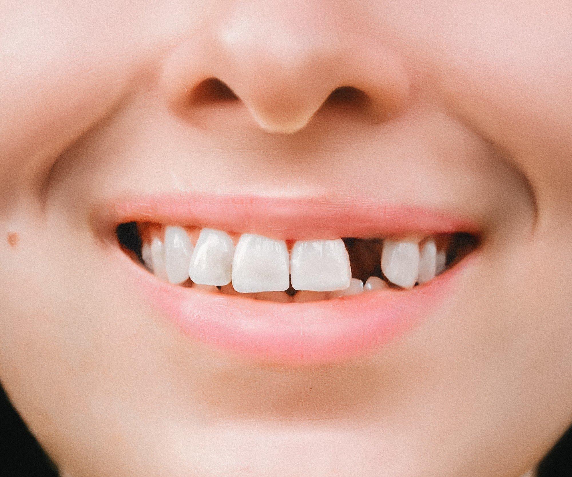 pourquoi perdre vos dents augmente les risques