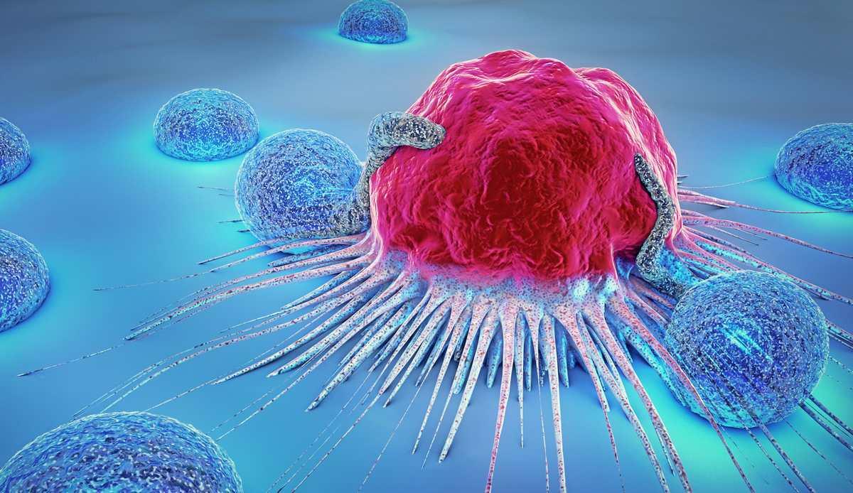 Bientôt un test universel pour le détecter en 10 minutes — Cancer