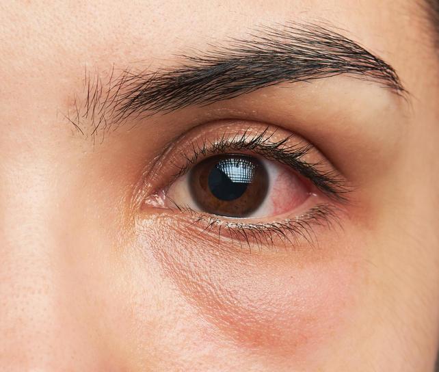 yeux rouges les causes de l 39 irritation de l 39 oeil medisite. Black Bedroom Furniture Sets. Home Design Ideas