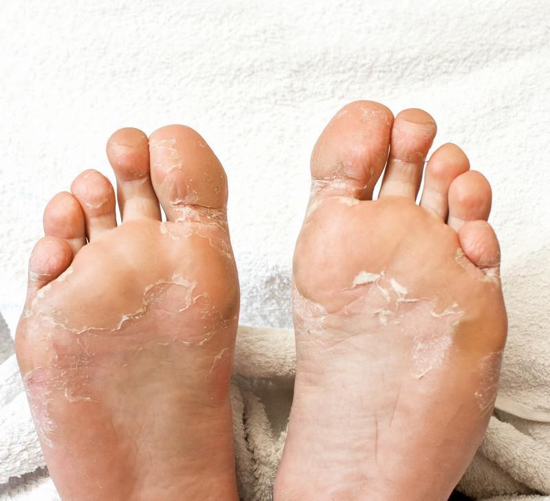 Asd le traitement du psoriasis dozirovka