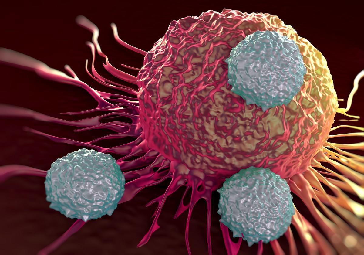 cancer du sein la tumeur qui se voit mal chez les femmes qui ont des kilos en trop medisite. Black Bedroom Furniture Sets. Home Design Ideas
