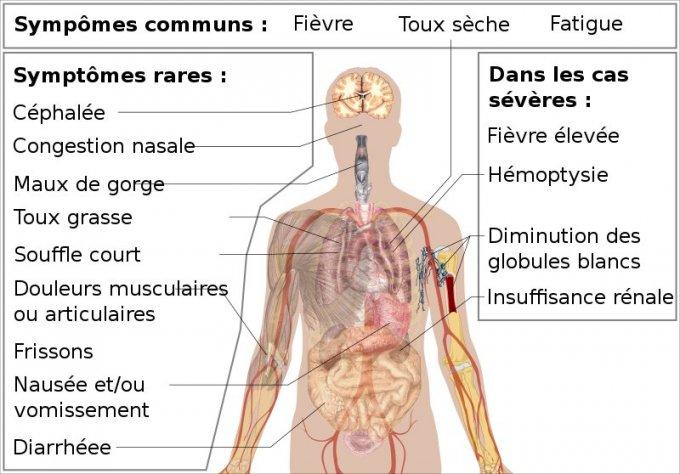 fièvre douleurs articulaires fatigue