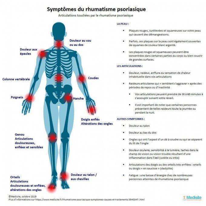 Foto: presentazione dei sintomi dell'artrite psoriasica