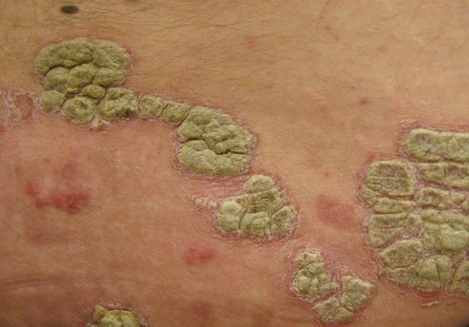 Foto: riconoscere la psoriasi pustolosa