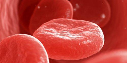 Cancer du sang : les symptômes de la leucémie