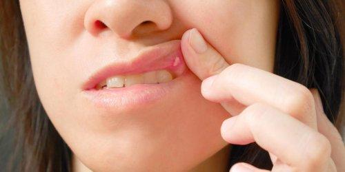 Bouton dans la bouche : qu'est-ce que le kyste labial