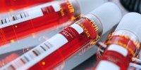 Coronavirus: qu'est-ce qu'un test sérologique?