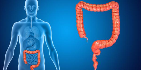 Cancer du colon ou du rectum : la difference