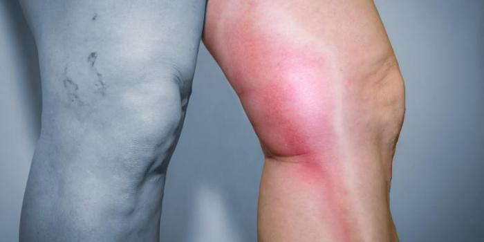 Venous insufficiency: the most serious complication