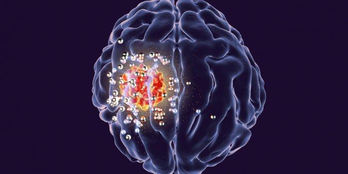 Tumeur au cerveau : peut-on en guérir ?