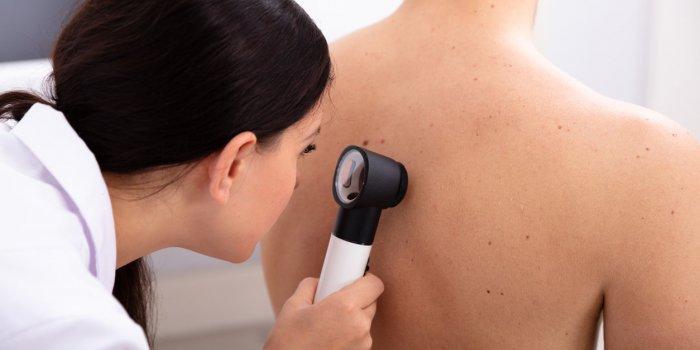 Cancer de la peau : l'ANSM suspend la mise sur le marché du gel Picato