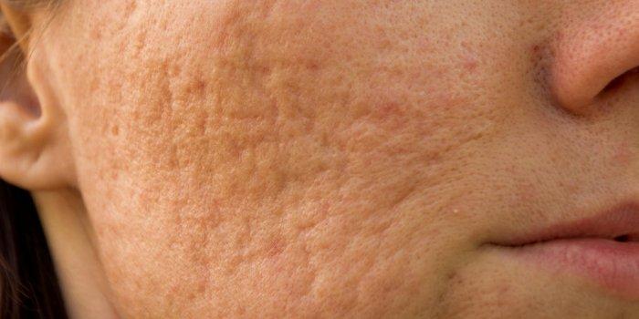 Peau granuleuse : un signe d'allergie au visage ?