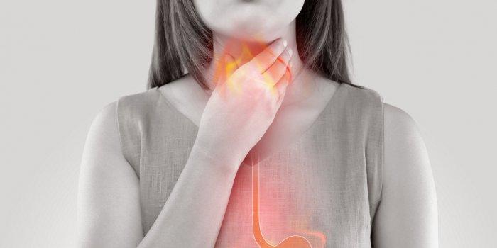 Remontées acides : les remèdes naturels qui soulagent
