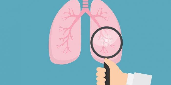 De la graisse retrouvée dans les poumons de personnes en surpoids