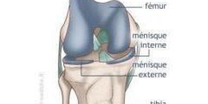 Rupture du ligament croisé antérieur du genou (LCA ...