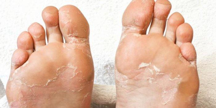 psoriasis pied photo