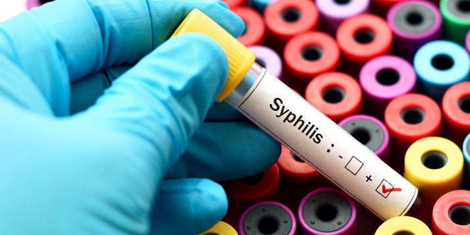 Syphilis : symptômes, traitements, transmission et dépistage