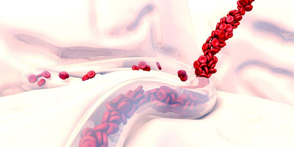 Purpura (rhumatoïde, fulminans, thrombopénique, vasculaire) : quels traitements ?
