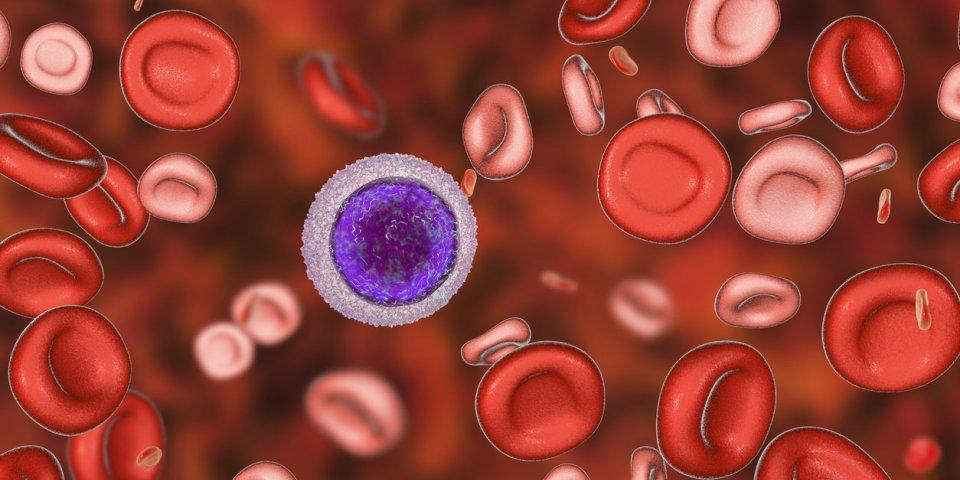 Anémie ferriprive (carence martiale, en fer) : traitements, causes et diagnostic