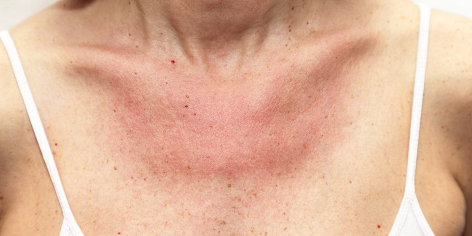 Lucite estivale, polymorphe (allergie au soleil) : symptômes et traitements