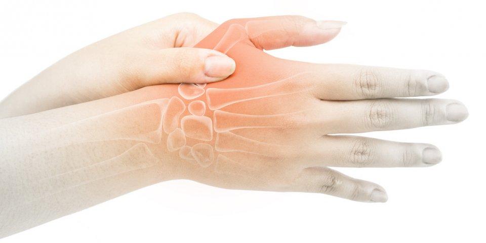 Rhizarthrose : définition, symptômes, causes, traitements