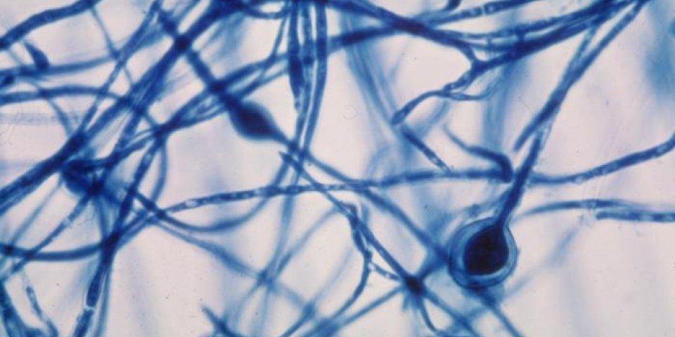 Mycose (candidose) cutanée ou de la peau : traitements, temps de guérison, photo