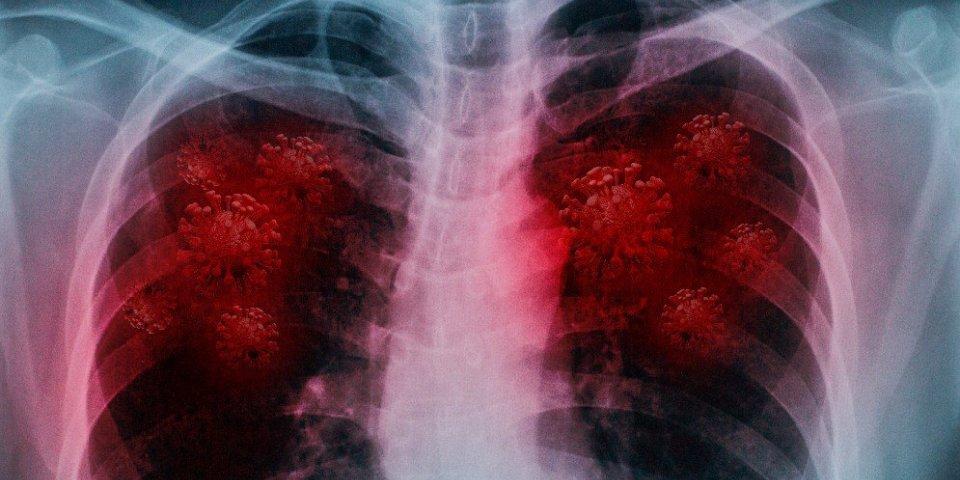 (Photo) : les poumons post-Covid semblent pires que ceux des fumeurs, prévient une chirurgienne