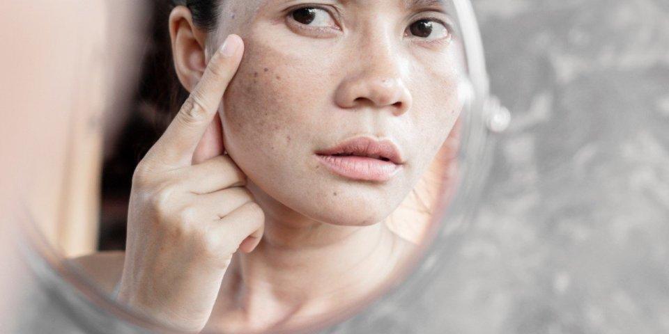 Taches brunes : causes, dangers, traitements... Tout pour les éliminer