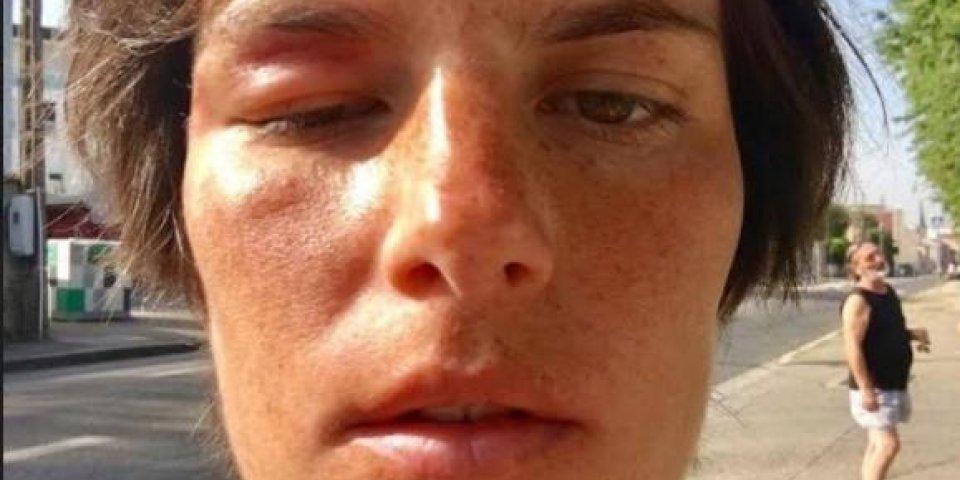 Algie vasculaire de la face :