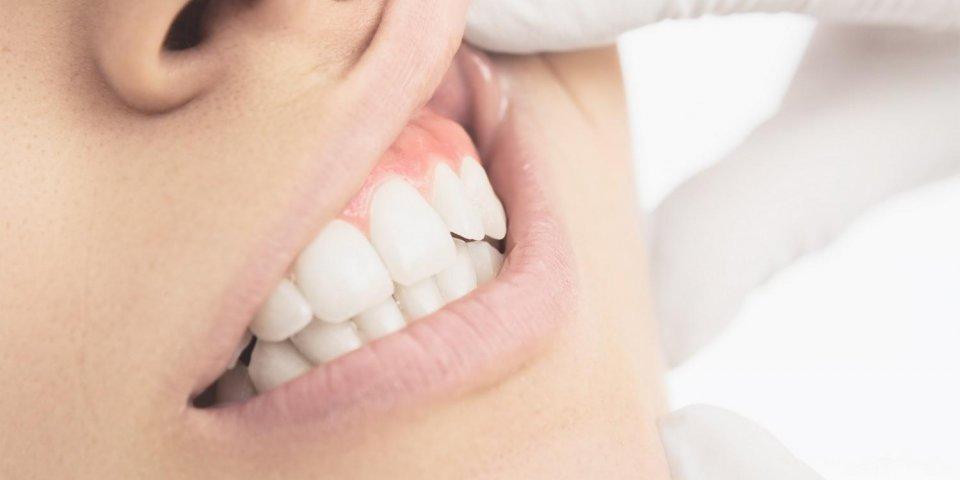 les dents blanches visitent les gencives rougeâtres