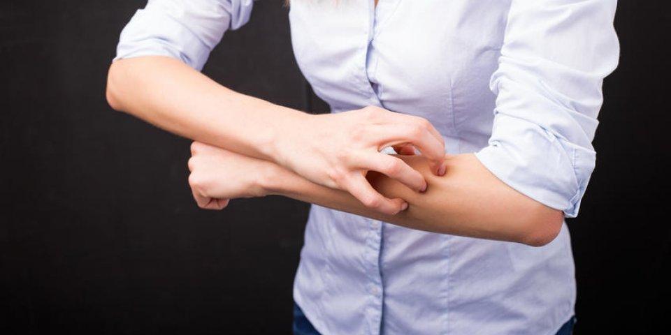 Psoriasis pustuleux : qu'est-ce que c'est et comment le soigner ?