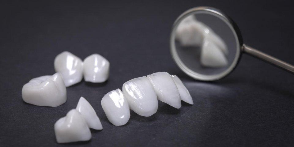 8 signes qui montrent que vous risquez de perdre vos dents