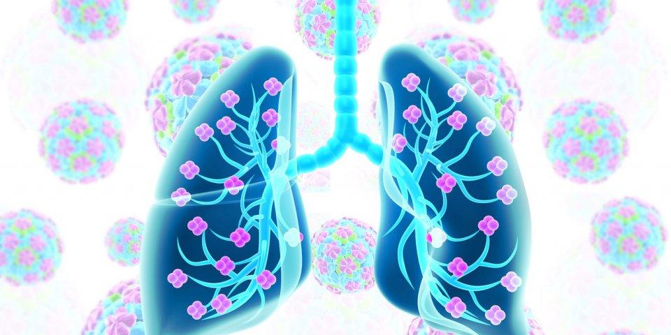 Covid-19 : première greffe pulmonaire en France