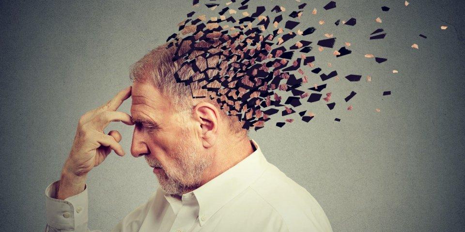 Alzheimer : le donanemab, le nouvel espoir d'un traitement efficace ?