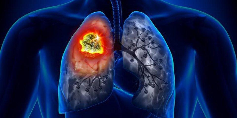 cancer du poumon - détail de la tumeur