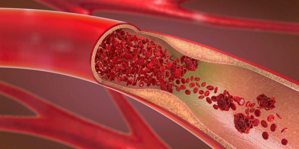 Covid-19 : plusieurs patients guéris développent des embolies pulmonaires