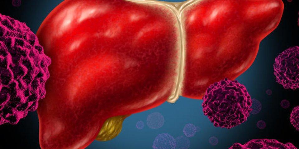 organe du cancer du foie humain comme un symbole médical d'une tumeur maligne maladie des globules rouges comme une croi...