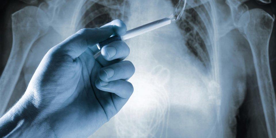 Cancer du poumon : le cancer qui ferait le plus de victimes en 2019