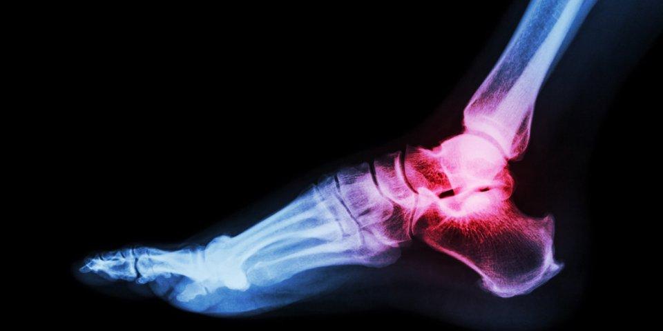 Arthrose du pied : les exercices faciles à faire au quotidien