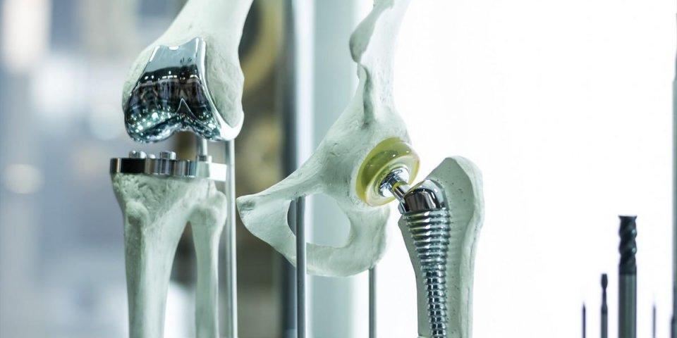 Prothèse de la hanche : les étapes de la pose