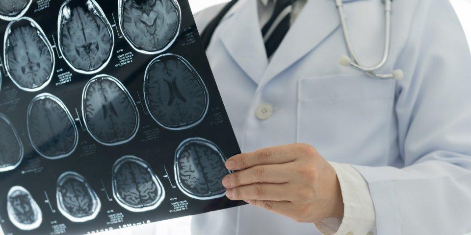 Alzheimer : pourquoi le cholestérol pourrait favoriser la maladie