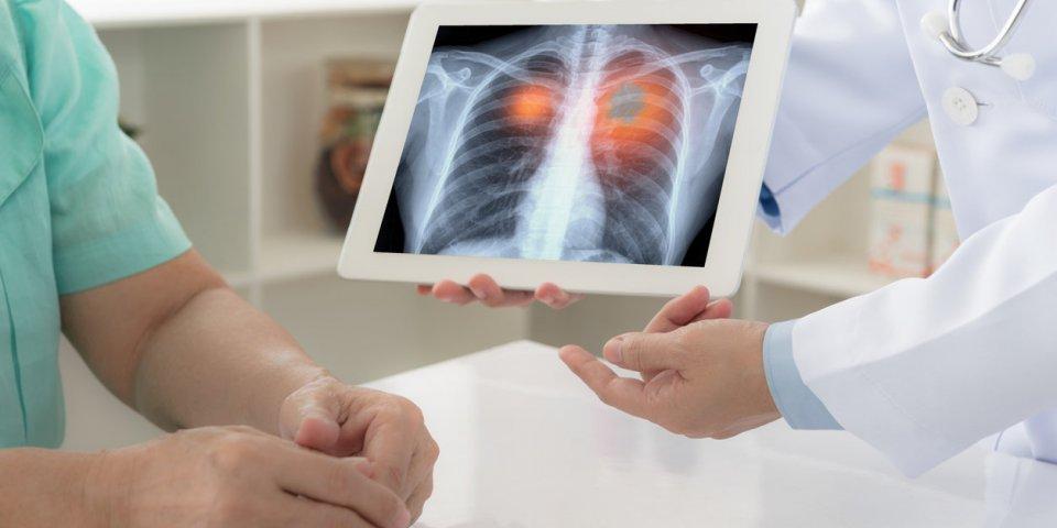 Covid-19 : les cancers les plus dangereux en cas d'infection