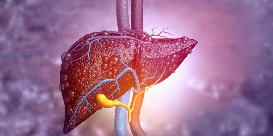 Cancer du foie : les boissons qui augmentent le risque