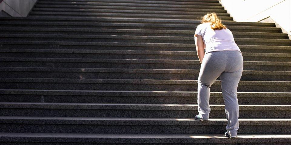 Coronavirus et obésité : à partir de quel poids vos risques augmentent ?