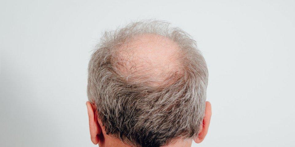 Covid-19 : une étude met en garde les hommes chauves